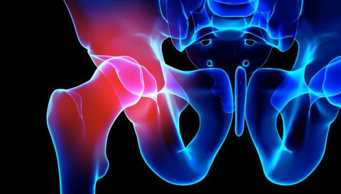 4 raisons pour lesquelles votre dos ne fait mal que d'un côté