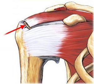 Douleur de la coiffe des rotateurs et pourquoi vous ne devriez pas l'ignorer